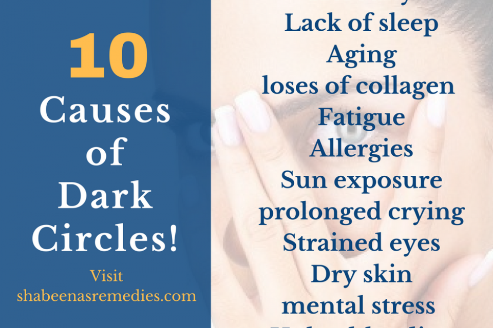 What Causes Dark Circles Under Eyes